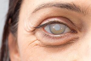 самые эффективные глазные капли от катаракты, фото Линзочки