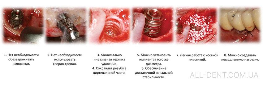 Выкручивание_имплантов_без_повреждения_кости