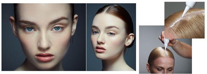 пилинг кожи головы до и после