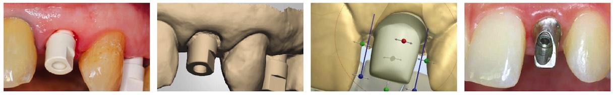 Скан-Абатмент NeoBiotech | Oral Scan Body AllDent