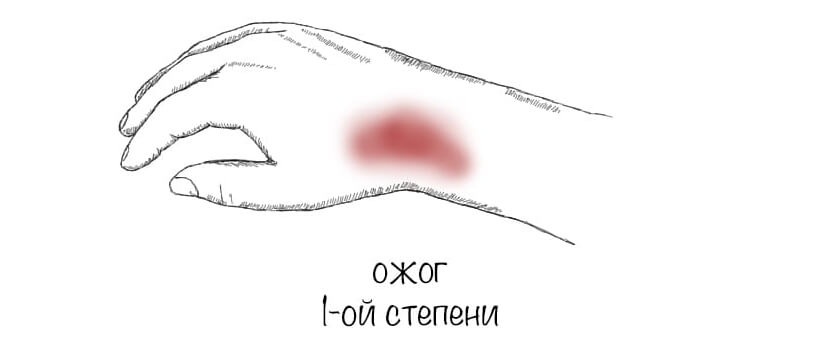 statja_ris_ozhog1_opti.jpg