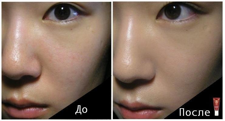 корейская косметика до и после