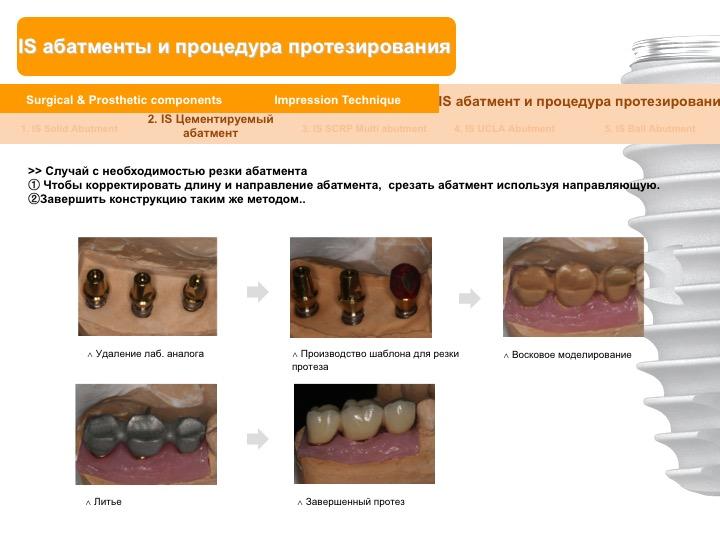 Neobiotech_Руководство_по_протезированию_33.jpg