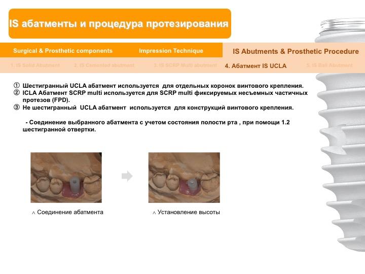 Neobiotech_Руководство_по_протезированию_54.jpg
