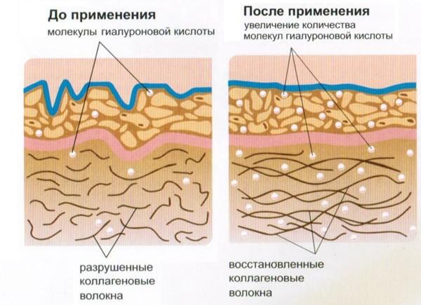 na-foto-effekt-ot-primeneniya-kollagenovyh-inektsiy-600x435.jpg