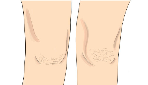 кератодермия (ороговевание) кожи на коленях