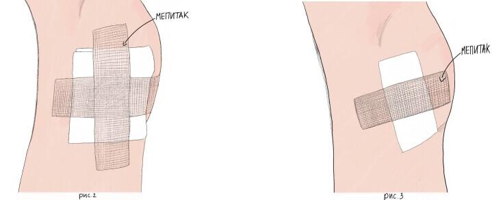 mepitac_ris2.jpg