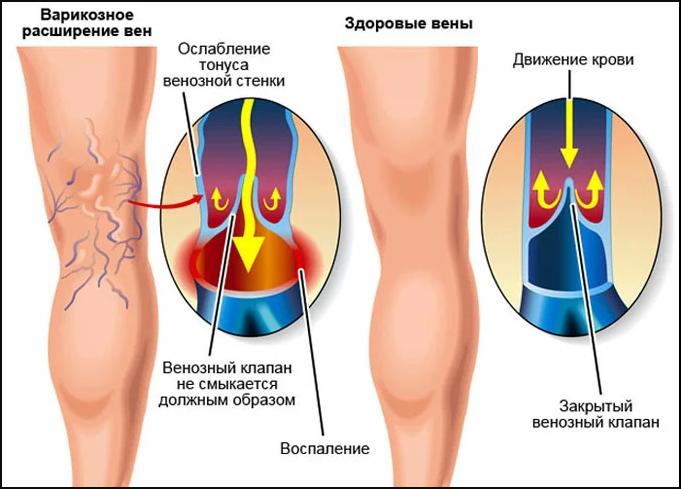 нога здорового человека и нога человека с варикозным расширением вен и несмыкающимися венозными клапанами