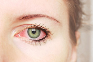 аллергия на линзы, фото