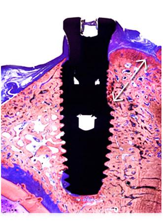 имплант-мис-v3-исследования