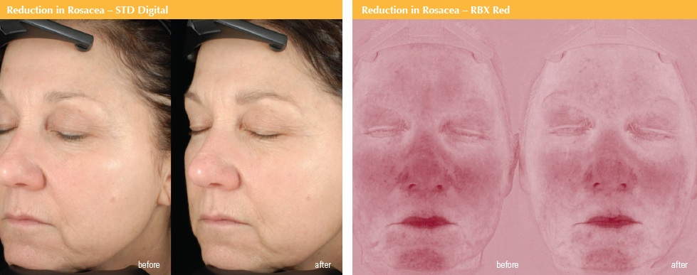 Idebenone-Complex-Clinical-Study-Rosacea2.jpg