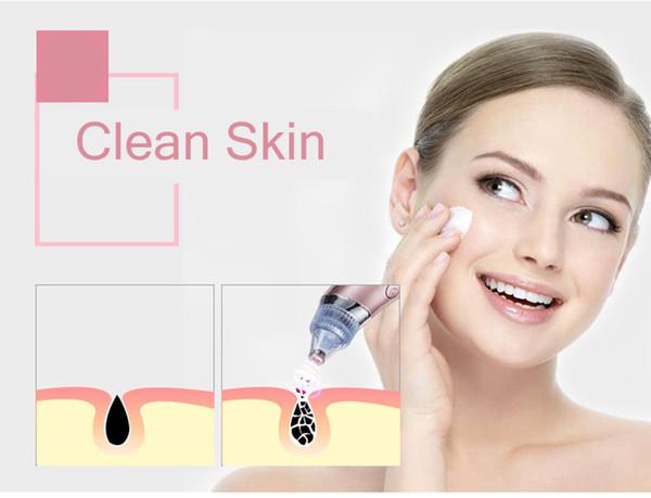 Вакуумный очиститель кожи Beauty Skin Care Specialist XN-8030