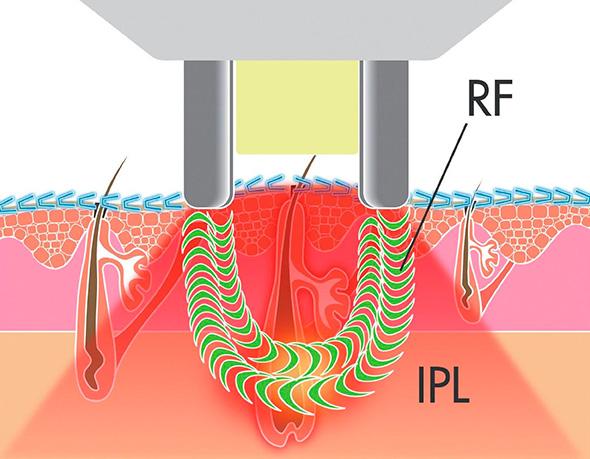 Технология воздействия элос-эпилятора на фолликул волоса