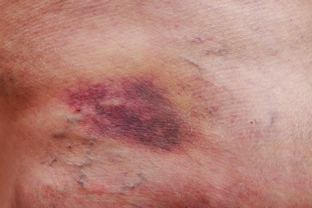трофическое поражение кожи