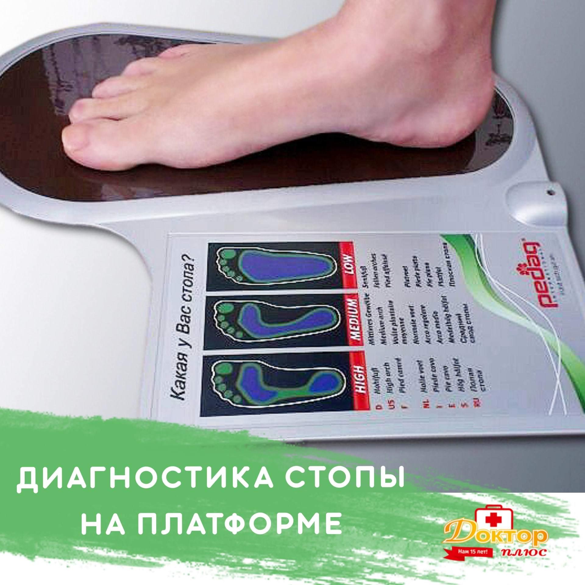Экспресс-диагностика стопы на платформе!
