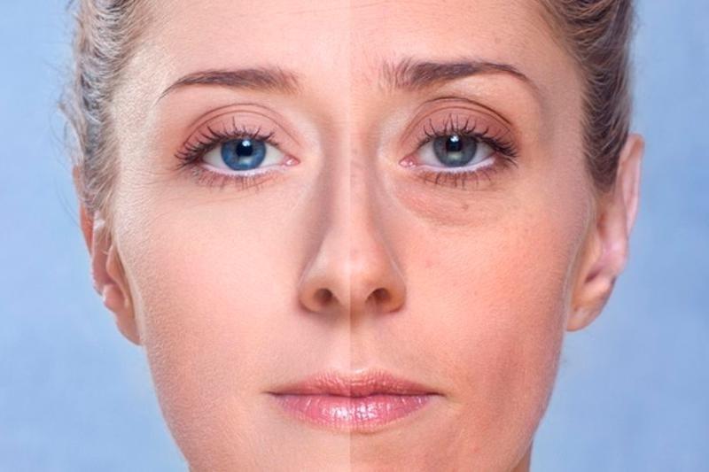 как убрать морщинки с лица на фото вышивке технике