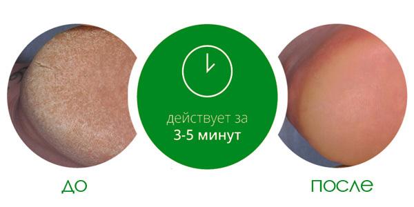 Средство для удаления натоптышей Callus Eliminator, Be Natural, 120 мл