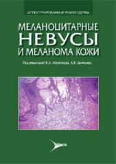Меланоцитарные невусы и меланома кожи