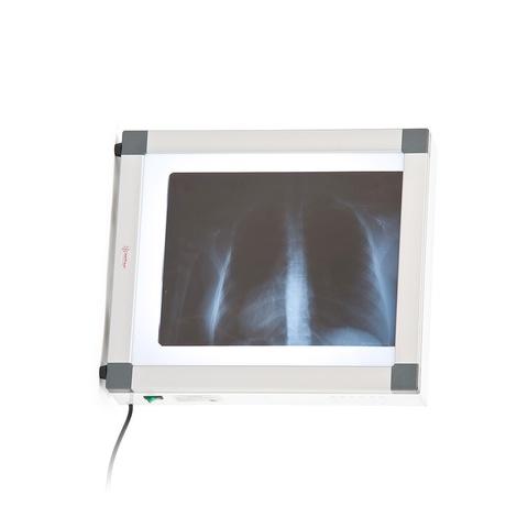 Негатоскоп флуоресцентный Армед 1-кадровый