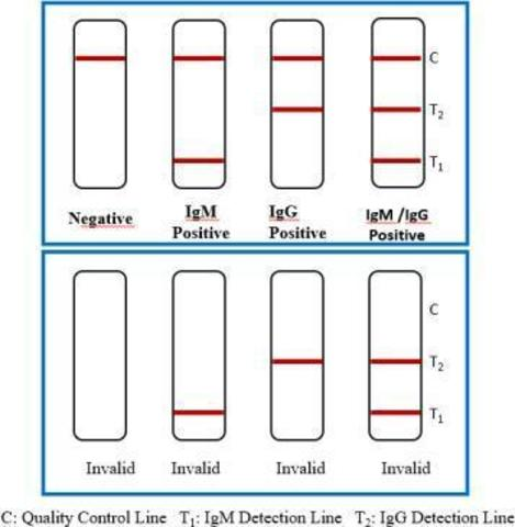 Тест-система SARS-CoV-2 Antibody Test (colloidal gold immunochromatography) для экспресс-анализа антител к коронавирусу иммунохроматографическим методом (20 тестов/уп)