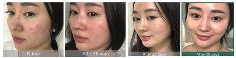 Тонер с кислотами для проблемной кожи Some By Mi AHA-BHA-PHA 30 Days Miracle Toner