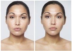 MAGICSTRIPES Подтягивающая коллагеновая маска на область щек и подбородка Lifting Collagen Mask