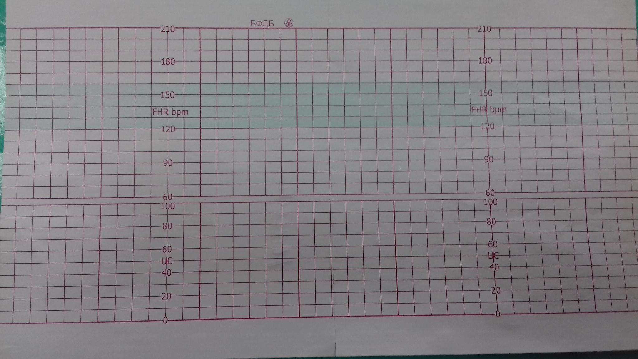 112х100х150, бумага КТГ для FM General Meditech G6A, реестр 4044/5