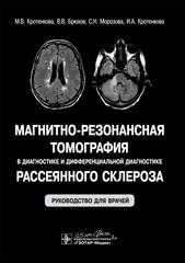 Магнитно-резонансная томография в диагностике и дифференциальной диагностике рассеянного склероза: руководство для врачей