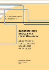 Одонтогенная подкожная гранулёма лица