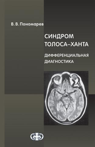 Синдром Толоса–Ханта. Дифференциальная диагностика (случаи из практики): Руководство для врачей / В. В. Пономарев