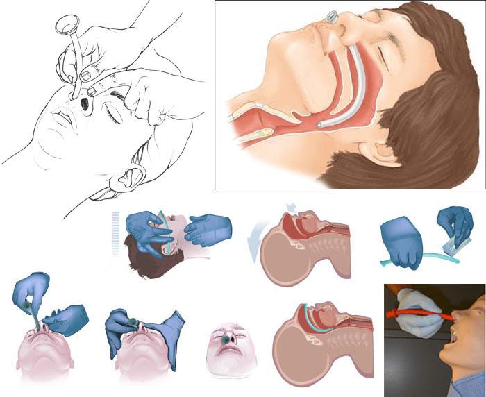 Назофарингеальный воздуховод (трубка для дыхательных путей)