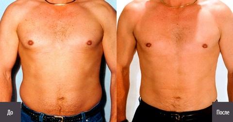 липосакция груди