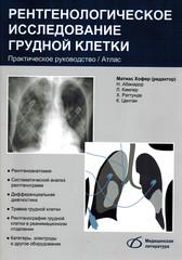 Рентгенологическое исследование грудной клетки