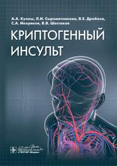 Криптогенный инсульт: руководство