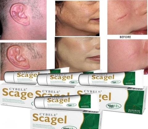 Гель для удаления всех видов шрамов Scagel