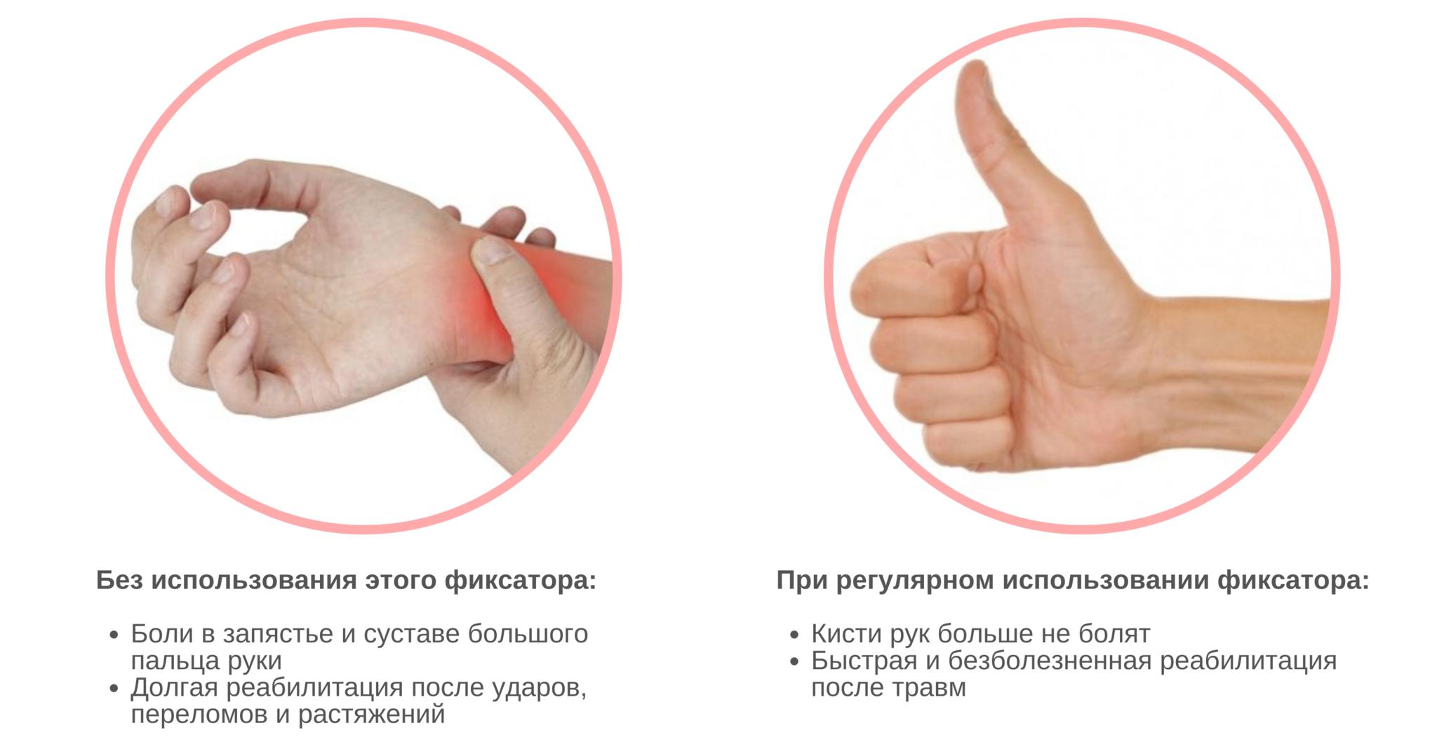 Фиксаторы для большого пальца руки с силиконовой подушечкой, 1 шт
